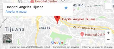 Medical Tourism in Mexico | Price  Quality  Experience