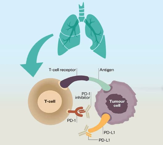 Immunotherapy in Lung Cancer