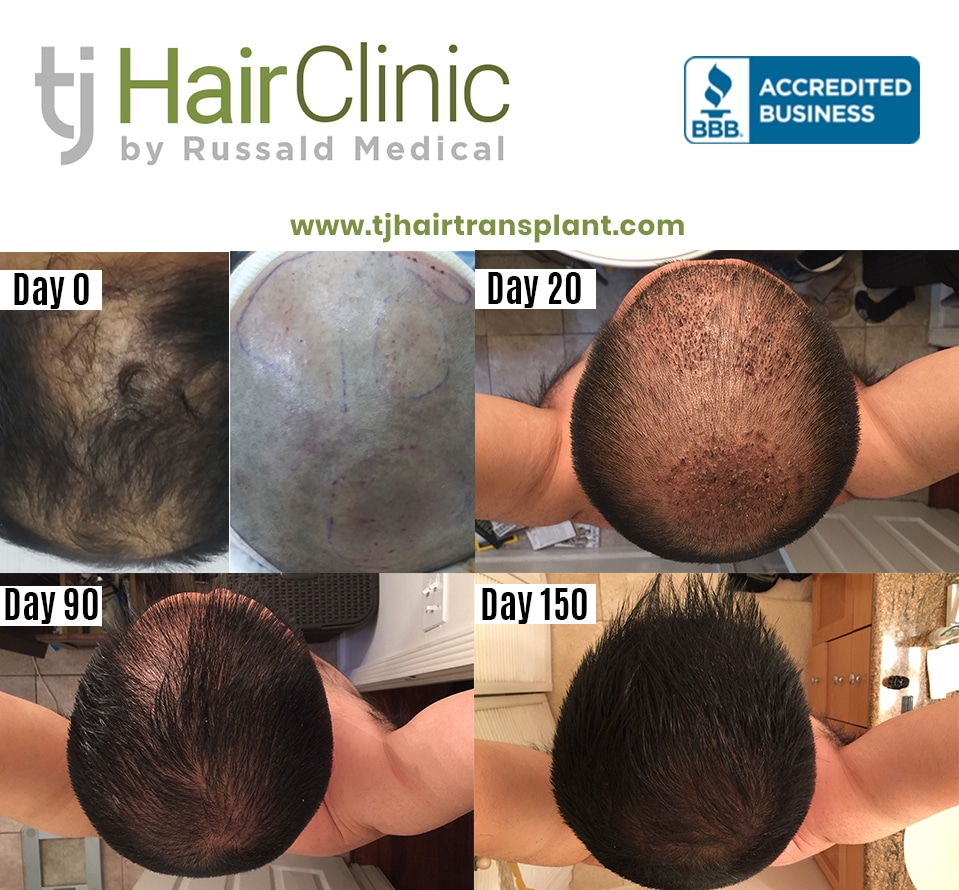 Befor and After - TJ Hair Clinic